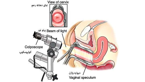 دستگاه کولپوسکوپی