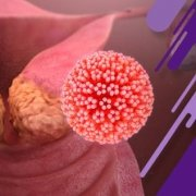علائم ویروس HPV