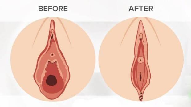 تنگ کردن واژن